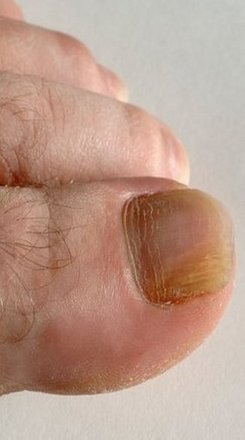 Avenel Podiatrist | Avenel Onychomycosis/Fungal Nails | | Family Podiatry Center |