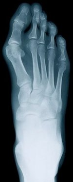 Avenel Podiatrist | Avenel Rheumatoid Arthritis | | Family Podiatry Center |
