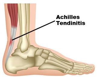 Avenel Podiatrist | Avenel Achilles Tendinitis | | Family Podiatry Center |