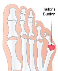 Avenel Podiatrist | Avenel Tailor's Bunion | | Family Podiatry Center |