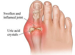 Avenel Podiatrist | Avenel Gout | | Family Podiatry Center |