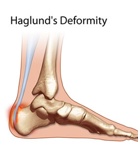 Avenel Podiatrist | Avenel Haglund's Deformity | | Family Podiatry Center |